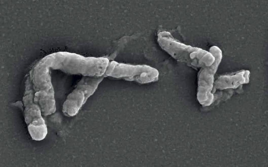 """Estudio demuestra la respuesta transcripcional de la cepa chilena """"Wenelen"""" de Acidithiobacillus Ferrooxidans"""