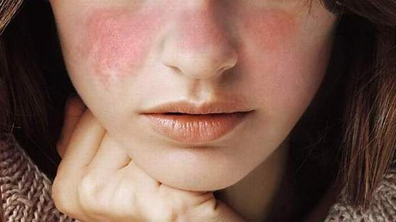 ECU a rostro de chica con lupus cutáneo