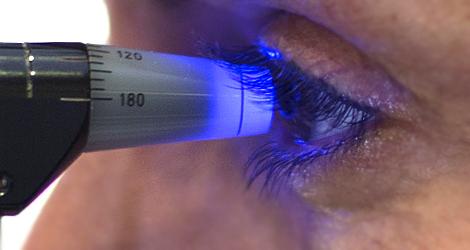 ¿Qué es el glaucoma?