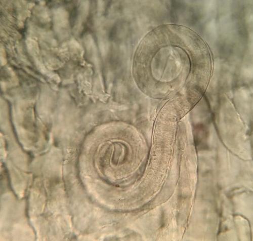 Trichinella spiralis